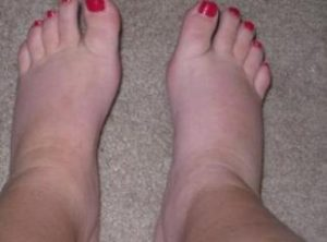 solutions-of-foot-swelling-after-pregnancy-1