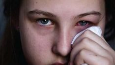 About Eye Fever